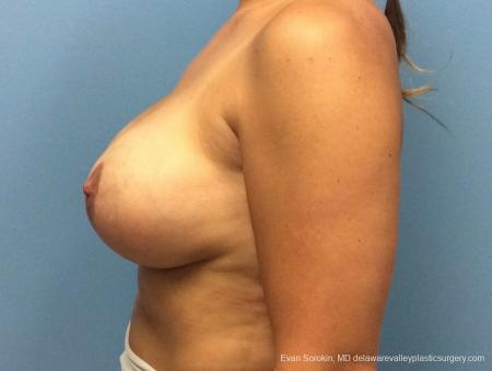 Philadelphia Breast Lift and Augmentation 13070 -  After Image 5