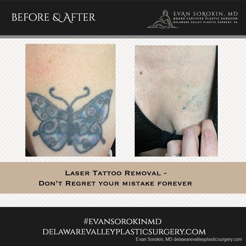 Tattoo Removal: Patient 3 - Before and After Image