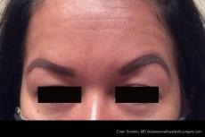 BOTOX® Cosmetic: Patient 2 - After Image