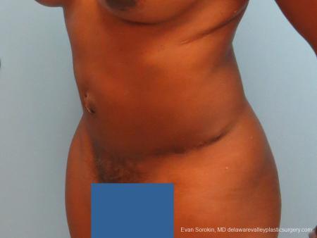 Philadelphia Abdominoplasty 9339 -  After Image 4