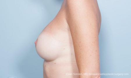 Philadelphia Breast Augmentation 8777 -  After Image 5