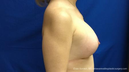 Philadelphia Breast Lift and Augmentation 13179 -  After Image 2