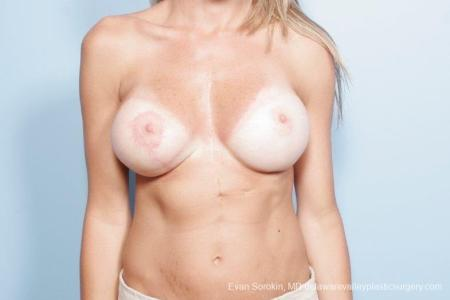 Philadelphia Breast Lift and Augmentation 8694 -  After Image 1