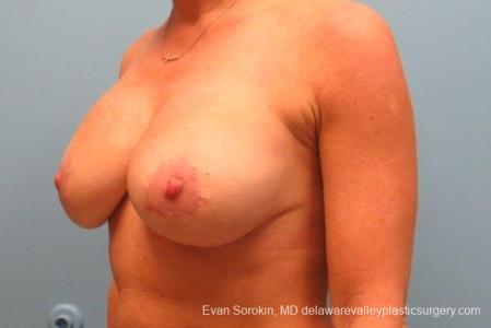 Philadelphia Breast Augmentation 8693 -  After Image 3