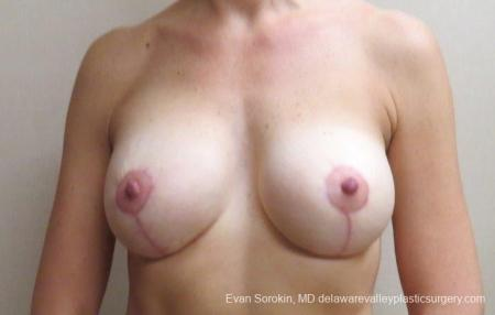 Philadelphia Breast Lift and Augmentation 8683 -  After Image 1