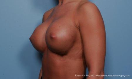 Philadelphia Breast Augmentation 9299 -  After Image 2