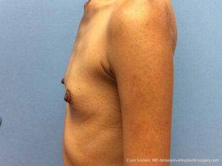 Philadelphia Breast Augmentation 13071 - Before and After Image 4