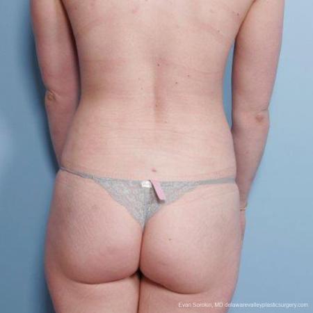 Philadelphia Liposuction 9482 -  After Image 5