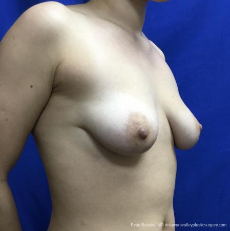Breast Lift And Augmentation: Patient 40 - Before Image 2