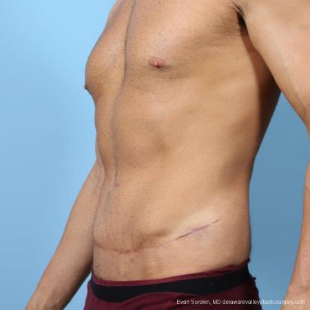 Philadelphia Abdominoplasty 9468 -  After Image 4