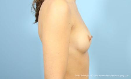 Philadelphia Breast Augmentation 8641 - Before Image 3