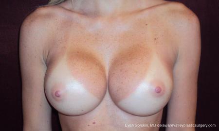 Philadelphia Breast Augmentation 9293 -  After Image 1