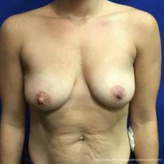 Breast Lift And Augmentation: Patient 3 - Before Image