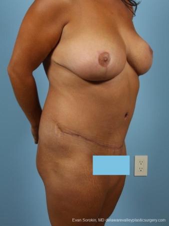 Philadelphia Mommy Makeover 8699 -  After Image 2