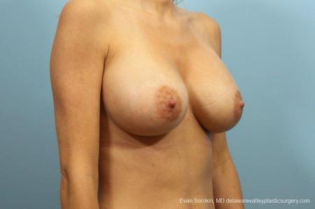 Philadelphia Breast Augmentation 9105 -  After 2