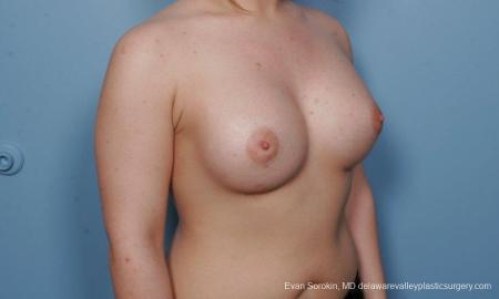 Philadelphia Breast Augmentation 9378 -  After Image 2