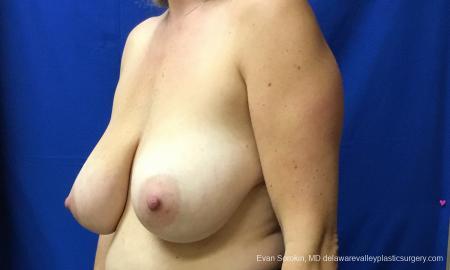 Philadelphia Breast Reduction 12512 - Before Image 3
