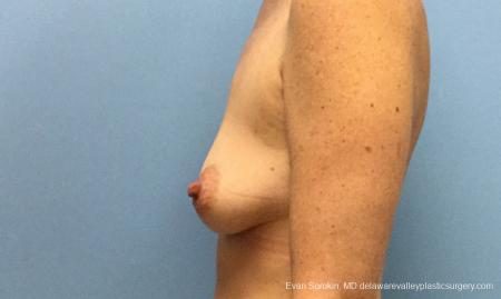 Philadelphia Breast Lift and Augmentation 10814 - Before and After Image 5