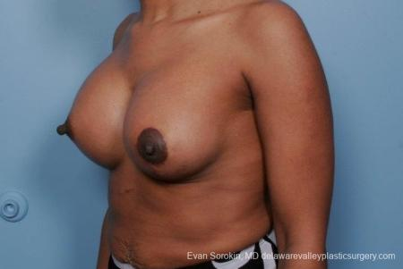 Philadelphia Breast Lift and Augmentation 8689 -  After Image 3