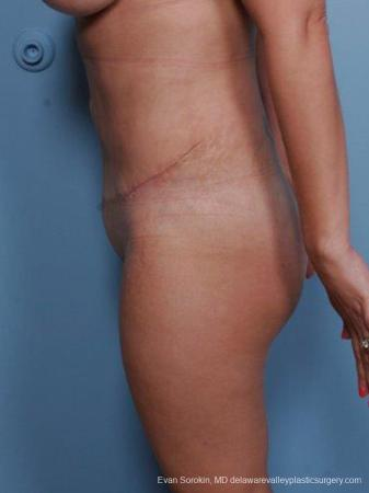 Philadelphia Abdominoplasty 9460 -  After Image 5