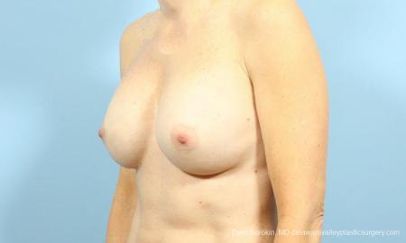 Philadelphia Breast Augmentation 9456 - Before Image 4