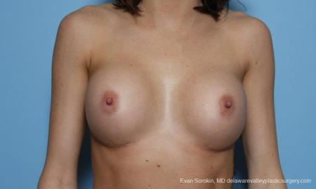 Philadelphia Breast Augmentation 9421 -  After Image 1