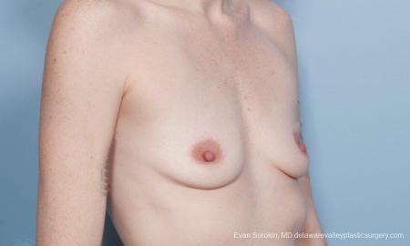 Philadelphia Breast Augmentation 8649 - Before Image 2