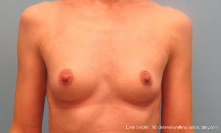 Philadelphia Breast Augmentation 9368 - Before Image 1