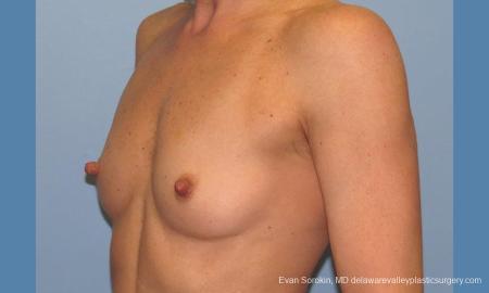 Philadelphia Breast Augmentation 9744 - Before Image 4