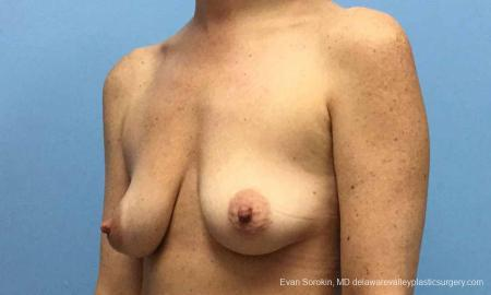 Philadelphia Breast Lift and Augmentation 10814 - Before Image 4