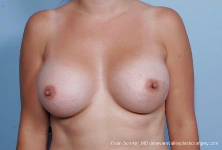 Philadelphia Breast Augmentation 8797 -  After Image 1