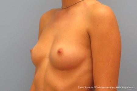 Philadelphia Breast Augmentation 8666 - Before Image 3