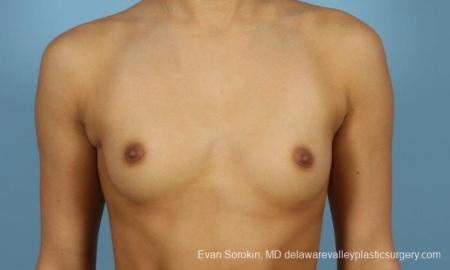 Philadelphia Breast Augmentation 9408 - Before Image 1