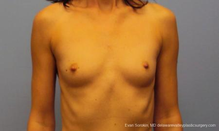 Philadelphia Breast Augmentation 9417 - Before Image 1