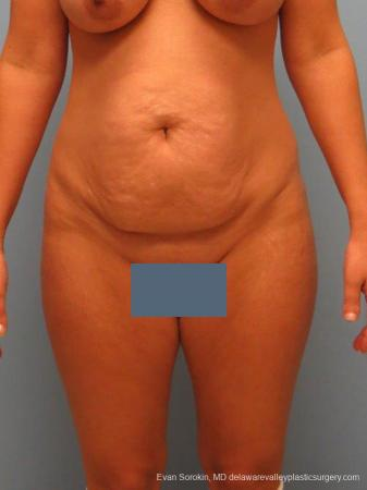 Philadelphia Abdominoplasty 9460 - Before Image 1