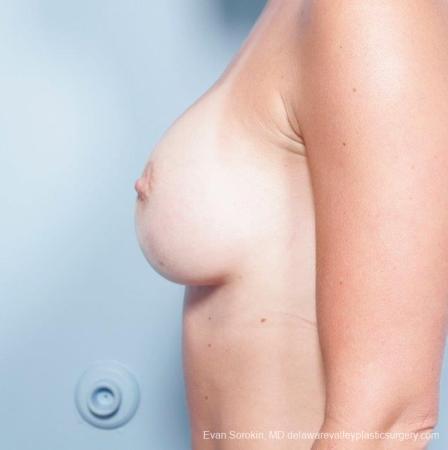 Philadelphia Breast Augmentation 8652 -  After Image 5