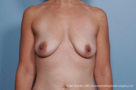 Philadelphia Breast Lift and Augmentation 8685 - Before Image 1