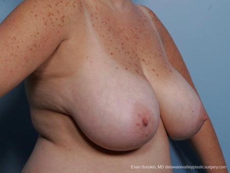 Philadelphia Breast Reduction 8703 - Before Image 2