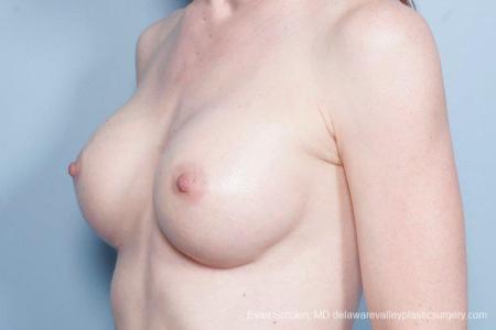 Philadelphia Breast Augmentation 9169 -  After Image 4