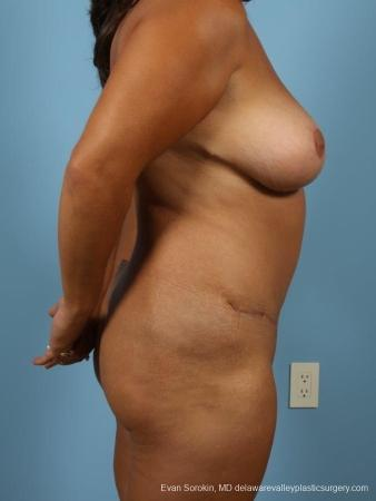 Philadelphia Mommy Makeover 8699 -  After Image 4