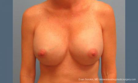 Philadelphia Breast Augmentation 9456 -  After Image 1