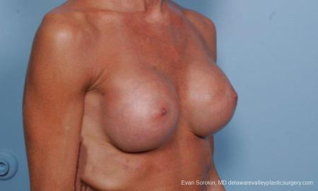 Philadelphia Breast Augmentation 8656 -  After Image 2