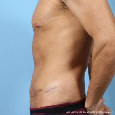 Philadelphia Abdominoplasty 9468 -  After Image 5