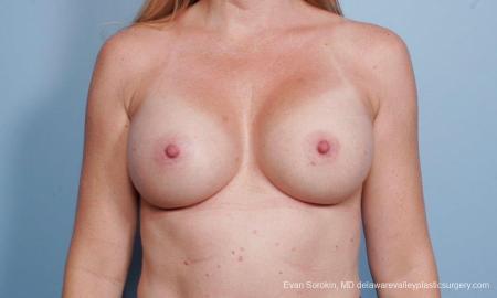 Philadelphia Breast Augmentation 9178 -  After Image 1