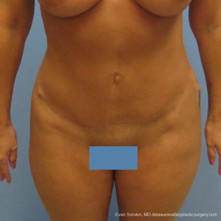 Philadelphia Abdominoplasty 9475 -  After Image 1