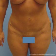 Philadelphia Abdominoplasty 9475 - After Image