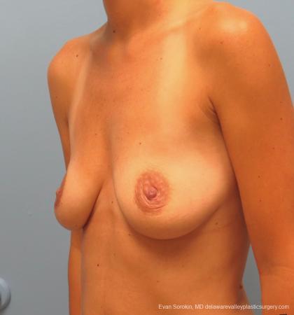 Philadelphia Breast Augmentation 13067 - Before Image 4