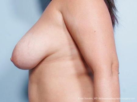 Philadelphia Breast Reduction 9441 - Before and After Image 5