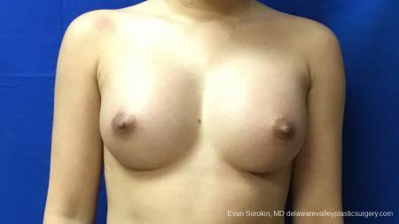 Philadelphia Breast Augmentation 13172 -  After Image 1