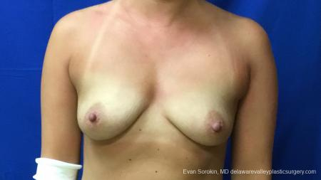 Philadelphia Breast Augmentation 13173 - Before Image 1